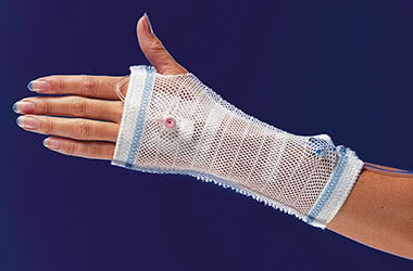 Wound dressing & IV fixation